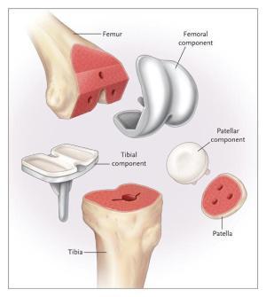 Best Knee Replacement Doctors On Long Island